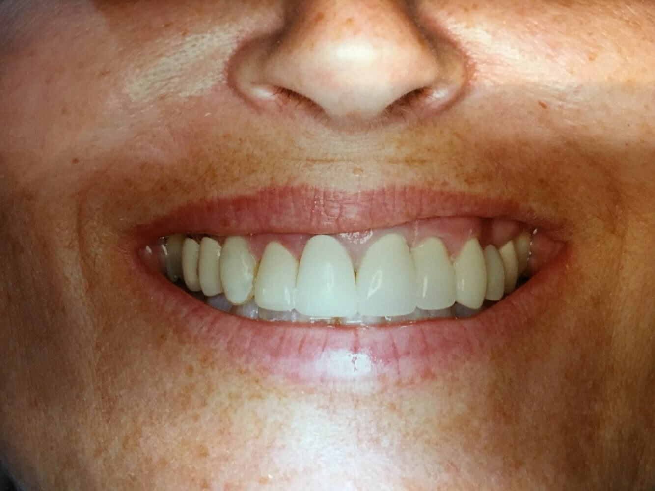 Full Smile Porcelain Crowns Before