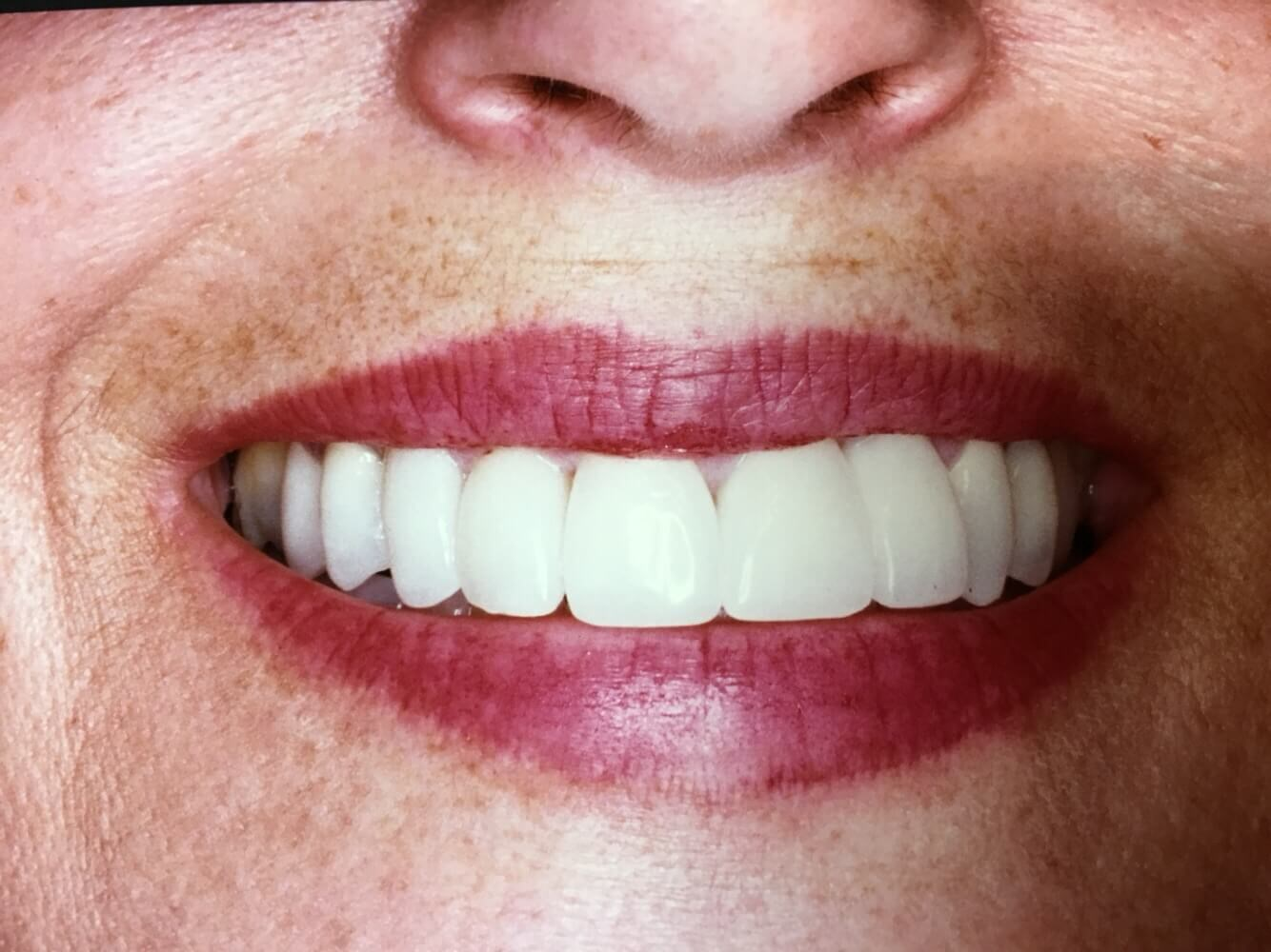 Full Smile Porcelain Crowns After