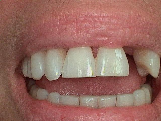 Cosmetic Smile Makeover Before all porcelain crowns