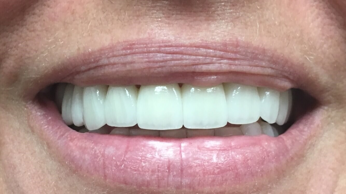 Cosmetic Smile Makeover After all porcelain crowns