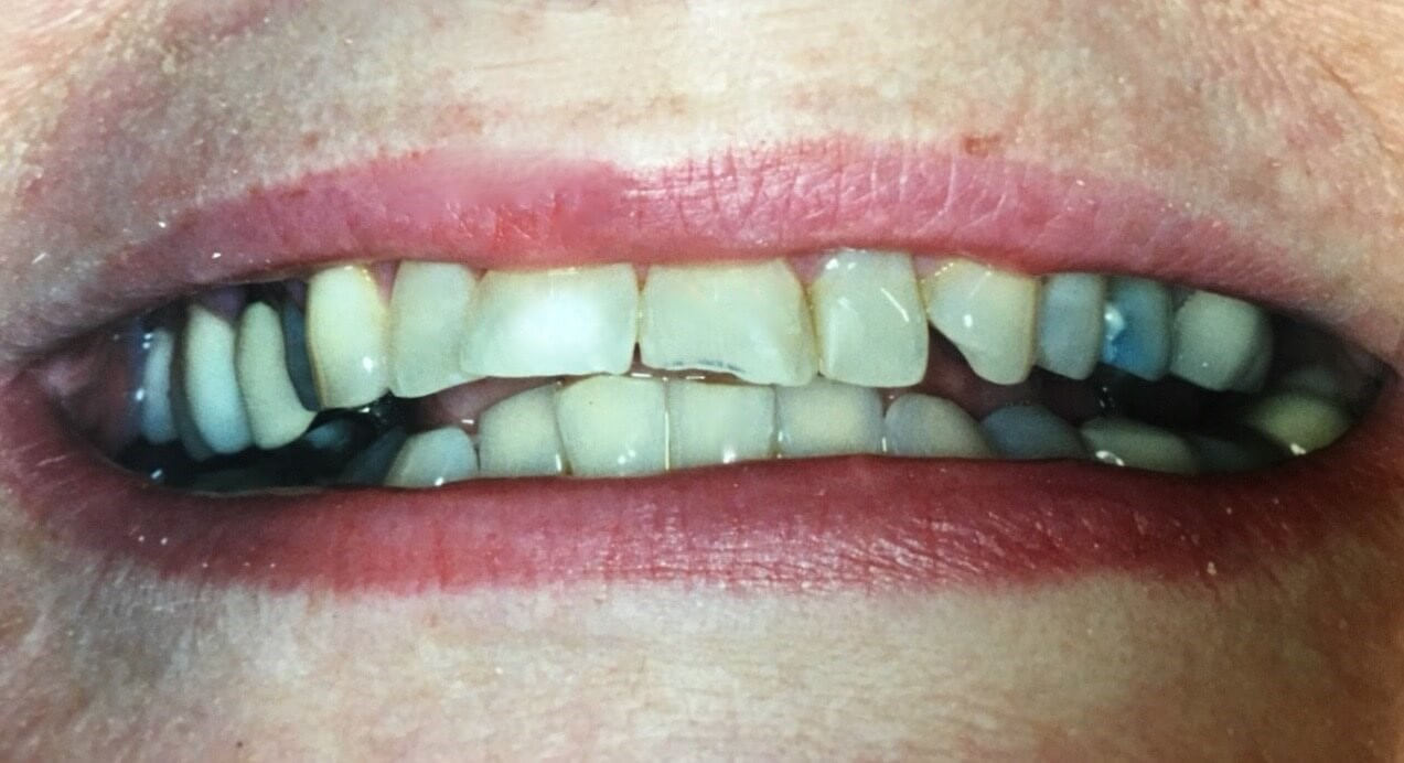 5-12 veneers Original Smile