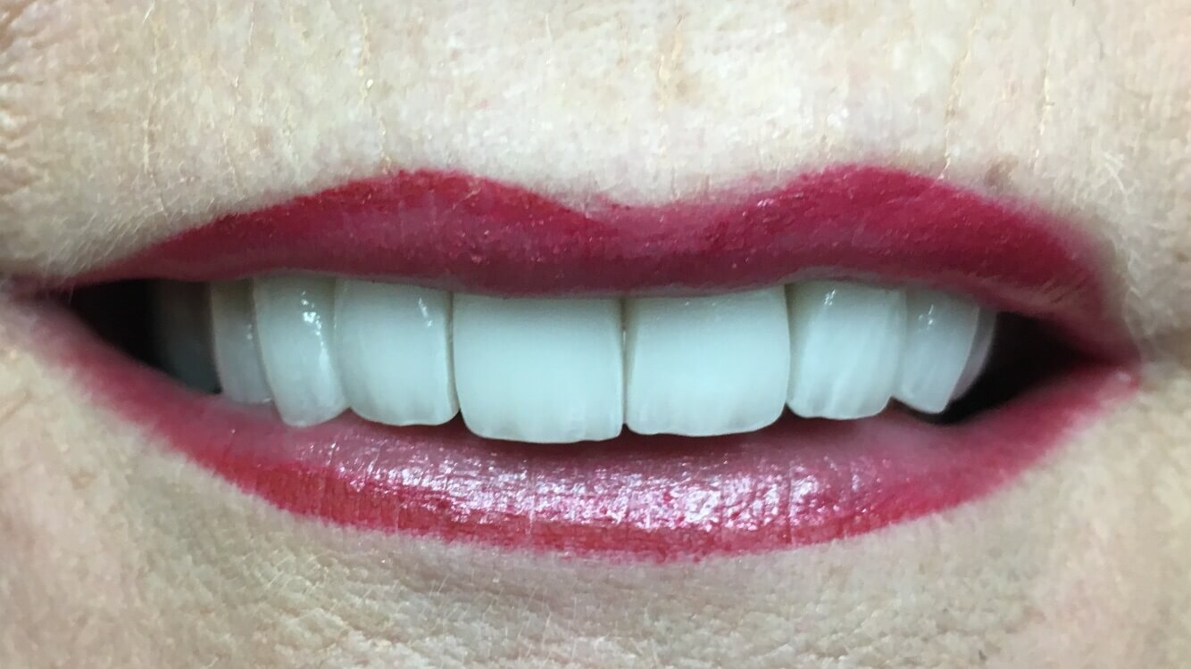 5-12 veneers Healthy Smile