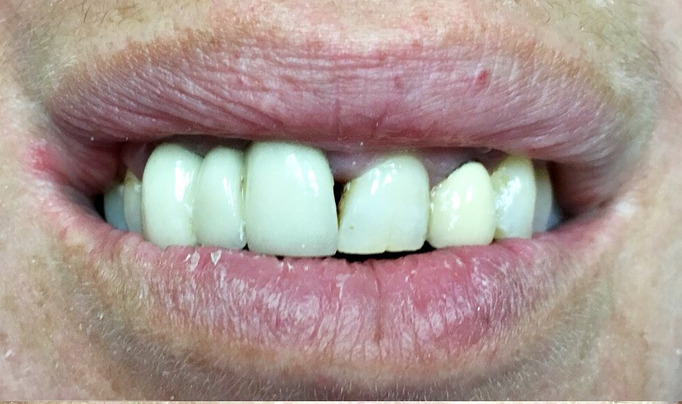 Porcelain Crowns Before