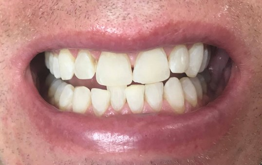 Before And After Laser Teeth Whitening Photos