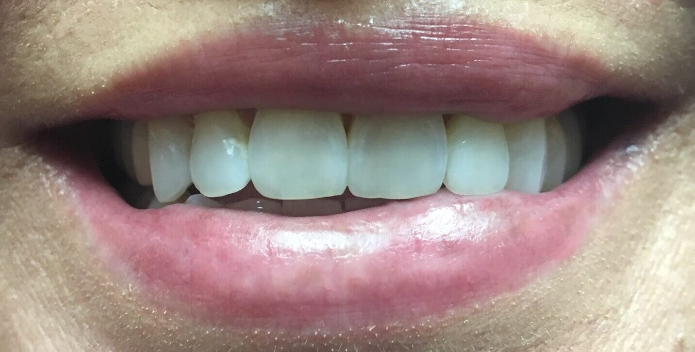 Veneer Before and After Smile Before